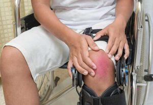 עורך דין נזקי גוף - נזק גופני